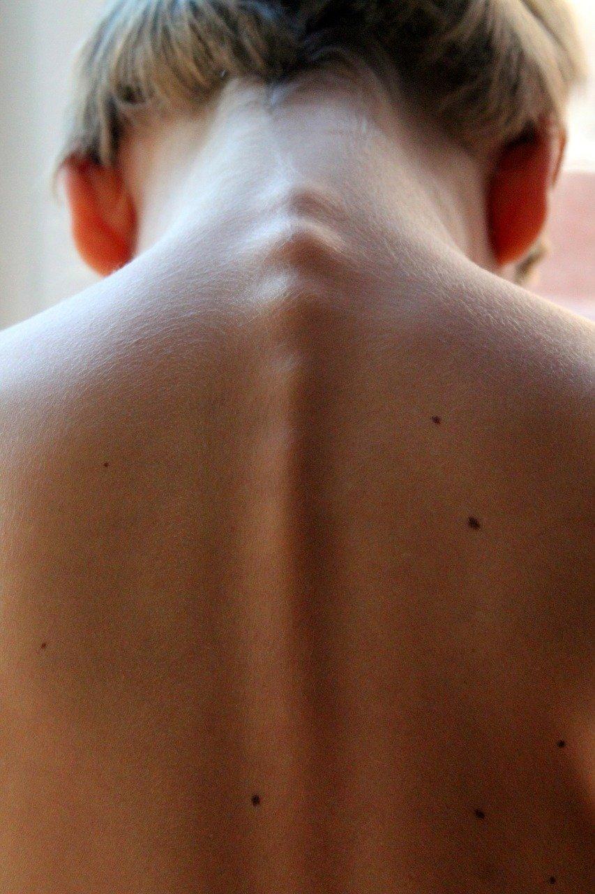 Spine - Back Pain Chiropractor Bentonville